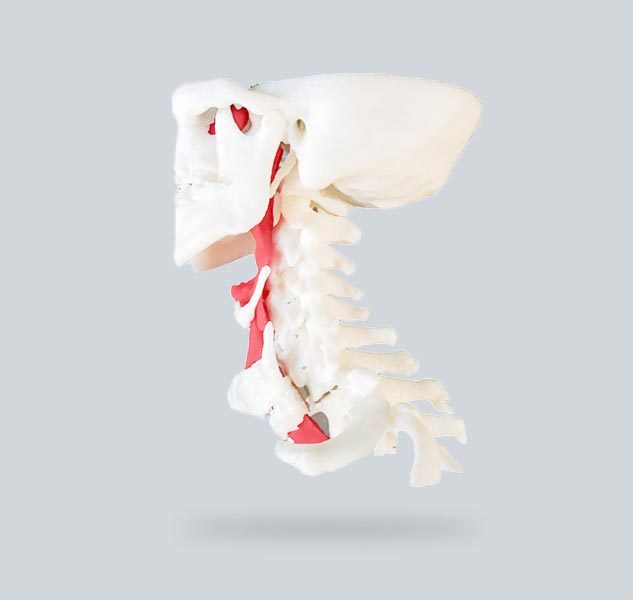 3d-printed-model-of-patients-spine-and-windpipe